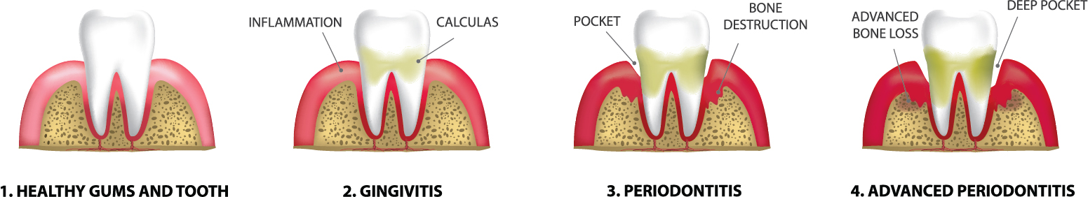 The stages of Gum Disease